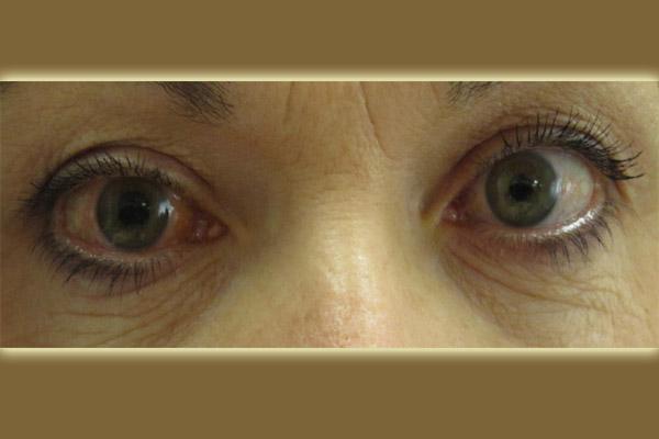 glaucoma diet